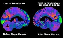 ChemoBrain1